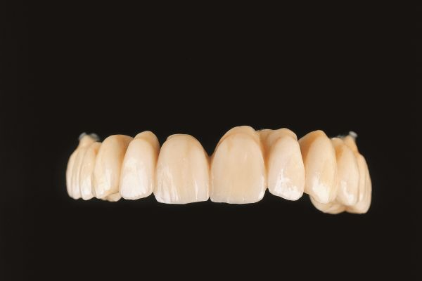 Implantatbrücken