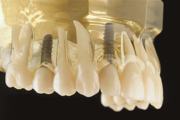 Zementierte Implantate