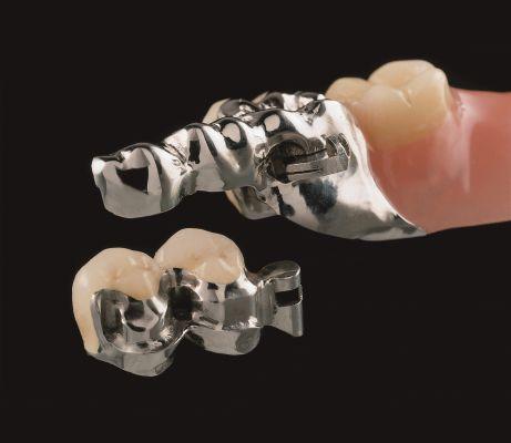 Doppelkronenprothese mit Riegel