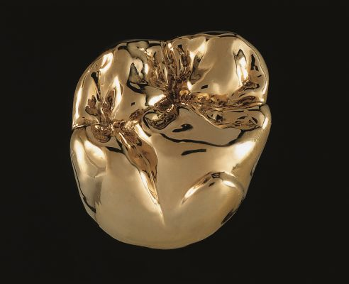 Kronen aus Metall
