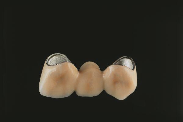 Zahnersatz aus Nicht-Edelmetallen