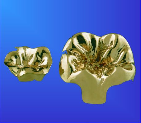 Inlay aus Gold