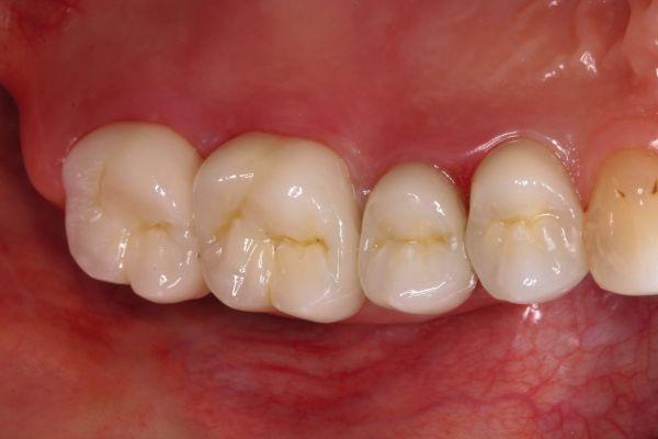 Verblendung für Zahnersatz