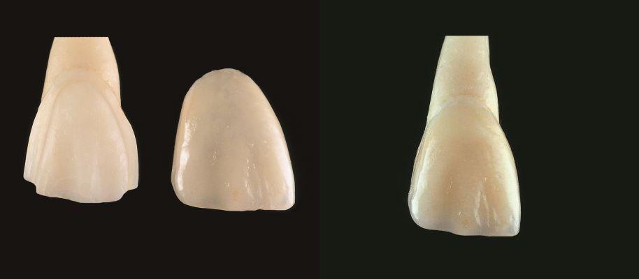 Keramik Veneers
