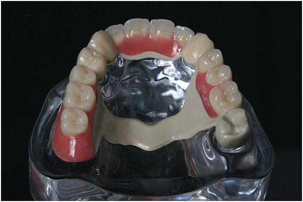 Ersatz für CoCr Metallbasen