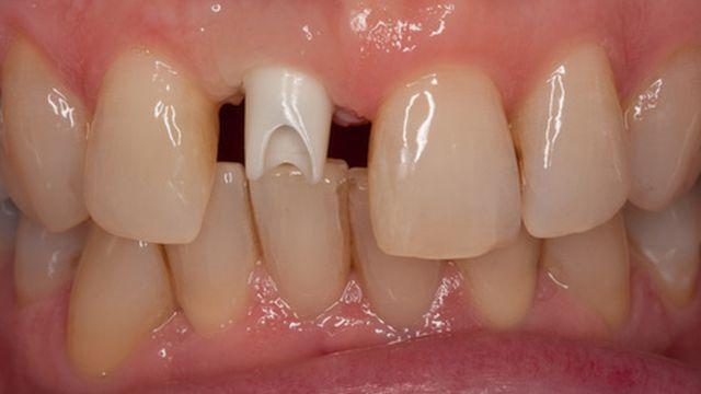 Implantatkronen
