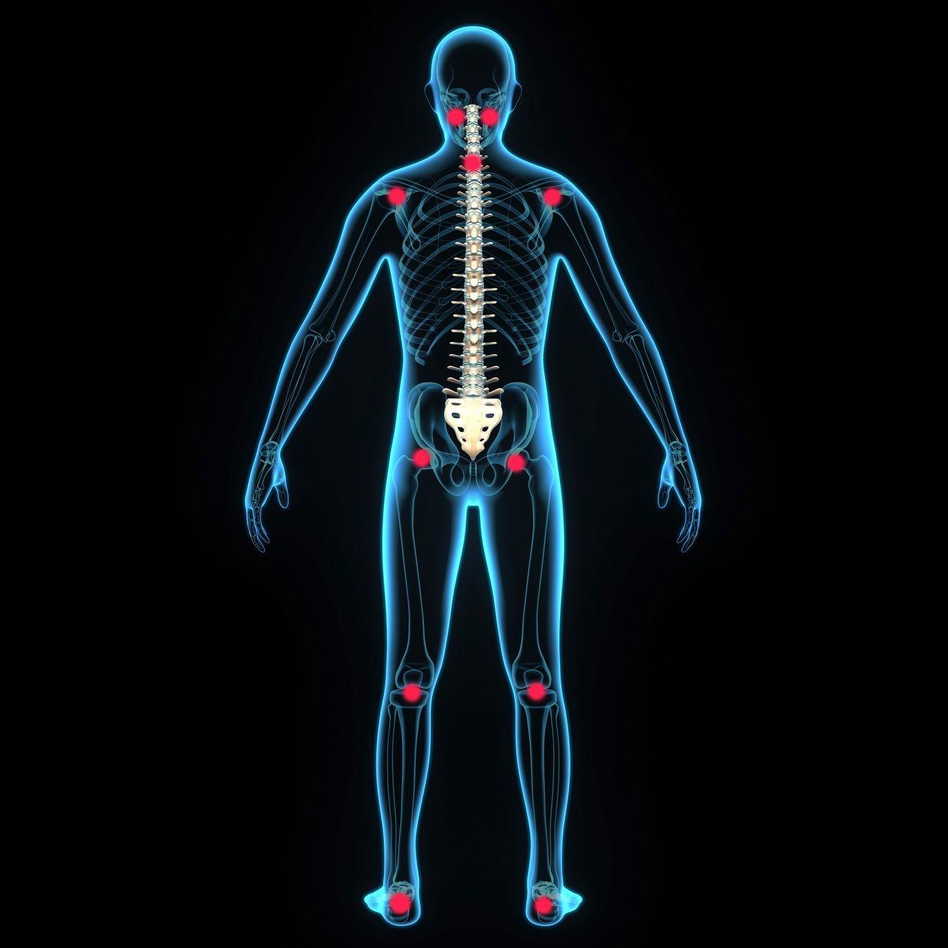 Stress-punkte am gesamten Körper