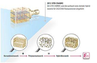 Inlays aus Enamic Hybridkeramik