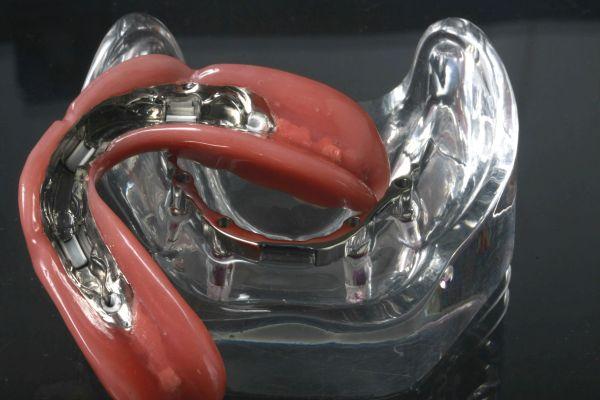Stegprothese als Teilkprothese