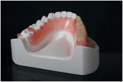 Bio Zahnersatz metallfrei