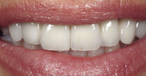 Für das perfekte Lächeln müssen die oberen sechs Zähne ebenfalls 1,6-mal so groß sein,