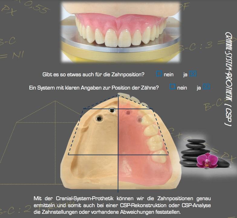Cranial-System Prothetik