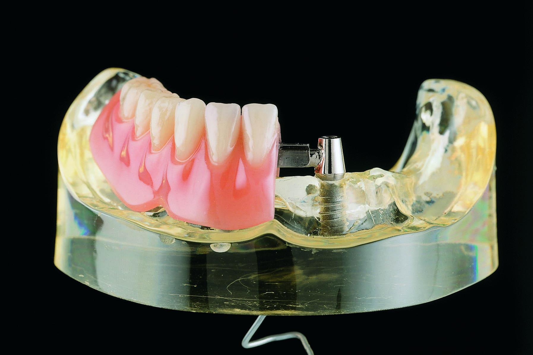 Zahnersatz aus Titan