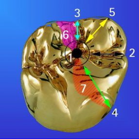 Zahnersatz aus Edelmetall